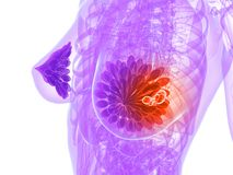 Breast cancer illustration Royalty Free Stock Photography