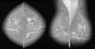 Breast cancer mammography in 2 projections. Mammography in all 3 projections showing a slight parenchyma distortion with some tiny microcalcifications. This Royalty Free Stock Image