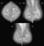 Breast cancer mammography in 3 projections. Mammography in all 3 projections showing a slight parenchyma distortion with some tiny microcalcifications. This Stock Images