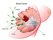 Breast Cancer. Medical illustration of the development of breast cancer royalty free stock photography