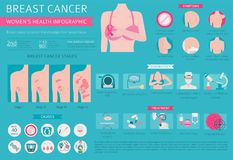 Breast cancer, medical infographic. Diagnostics, symptoms, treat. Ment. Women`s health set. Vector illustration vector illustration
