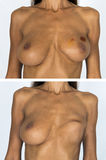 Breast Cancer Survivor mastectomy Before and After Royalty Free Stock Photography