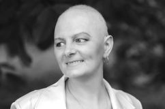 Breast cancer survivor with positive attitude Royalty Free Stock Photos
