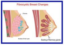 Breast feeding Royalty Free Stock Photos