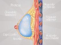Breast implant diagram Stock Image