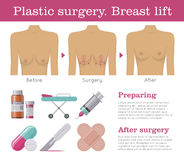 Breast lift plastic surgery. Mastopexy procedure clinic poster. Health promotion and education for women concept. Mockup vector illustration on white Stock Photography