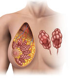 Breast tumor. Shifts in women's breast lobules Royalty Free Stock Image