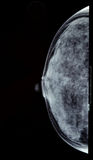 Breast X-ray Royalty Free Stock Images