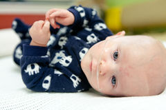 Breathing Tube in Nose of Sick Baby Royalty Free Stock Photography