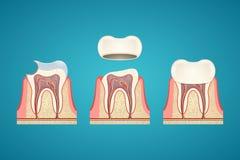 Brechen von Zähnen lizenzfreie abbildung