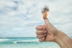 Brennender angehobener Daumen eines liker stockbilder