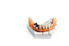 bridżowi zęby Zdjęcia Royalty Free