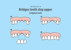 Bridges teeth step upper original root illustration vector on. Blue background. Dental concept stock illustration