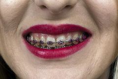 Bright mouth with braces Stock Images