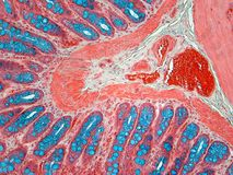 Brilliant Colon Seen Through the Eyes of a Histologist. The blue is glycosaminoglycans and some goblet cells. The red band in the C shape and far right are stock image