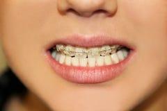Briquetas en los dientes Imágenes de archivo libres de regalías