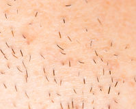 Bristles on the skin. close-up. A photo Royalty Free Stock Photography