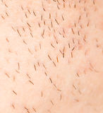 Bristles on the skin. close-up. A photo Stock Image