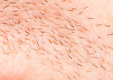 Bristles on the skin. close-up. A photo Stock Images