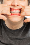 Broadly smiling cute man with dental braces Royalty Free Stock Images