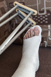 Broken ankle in gypsum Stock Image