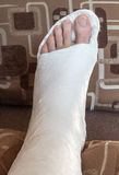 Broken ankle in gypsum Stock Photo
