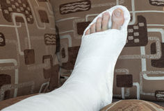 Broken ankle in gypsum Royalty Free Stock Photos