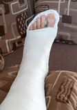 Broken ankle in gypsum Royalty Free Stock Images