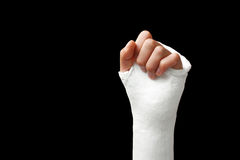Broken arm - 06 Stock Image