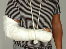 Broken arm Royalty Free Stock Photography