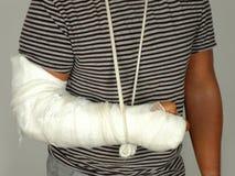 Broken arm royalty free stock photography