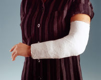 Broken arm Stock Images
