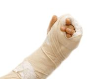 Broken arm Stock Image