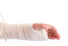 Broken Arm Stock Photography