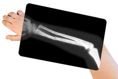 Broken arm. A broken arm with xray stock photos