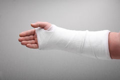 Broken arm bone in cast stock photo
