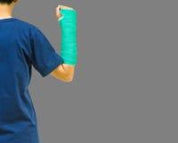 Broken arm bone in green cast on gray background. Stock Photo