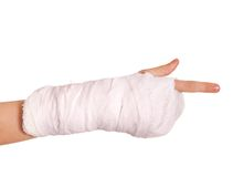 Broken arm in a cast Stock Photography