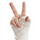 Broken arm in a cast. Fingers show character hippies - peace Royalty Free Stock Photos