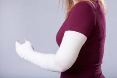 Broken arm Stock Photos