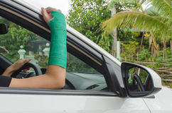 Broken arm with green cast on blurred woman fitness group - yoga Royalty Free Stock Image