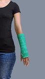 Broken arm with green cast on white background Stock Images