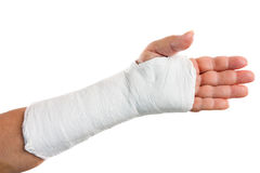 Broken arm with a plaster cast. Isolated on white Stock Images