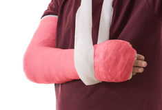 Broken arm in red plaster cast and sling Royalty Free Stock Images