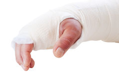 Broken Arm. In a splint and cast. Fingers are discolored and swollen. Shot in natural light royalty free stock photos