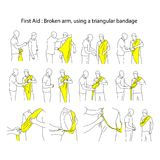 Broken arm using a triangular bandage vector illustration outline sketch hand drawn with black lines isolated on white background. First aid process stock illustration