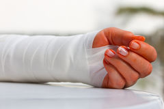 Broken arm. A broken arm was supported with a bandage Royalty Free Stock Photo