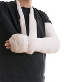 Broken arm in white plaster cast and sling Royalty Free Stock Photos