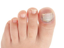 Broken big toe with nail detachment Stock Photos
