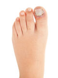 Broken big toe with nail detachment. On pure white background Stock Photos